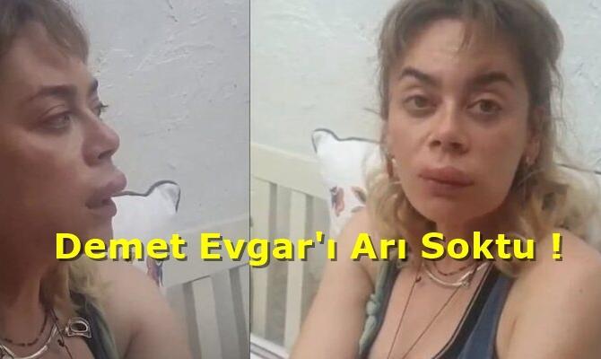 Demet Evgar'ı Arı Soktu!