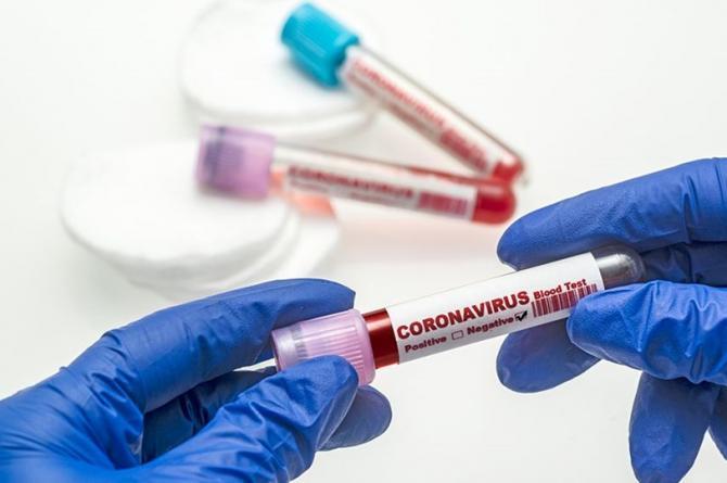 Korona virüsten 117 kişi hayatını kaybetti